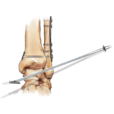 Ankle--Elbow-Fixation-Devices