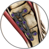 ALPS_total_foot_plating_system_11