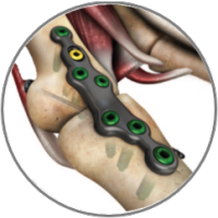 ALPS_total_foot_plating_system_07