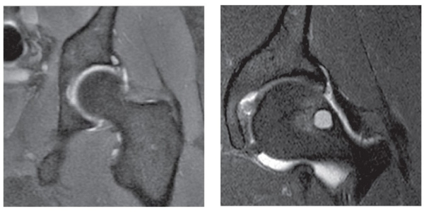 MRI of chronic Bone Marrow Lesions