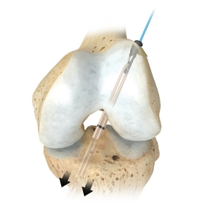 insetimage_SportsMed_EZLocFemoralFixation_01